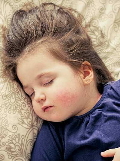 Baby Kind krank mit Fieber